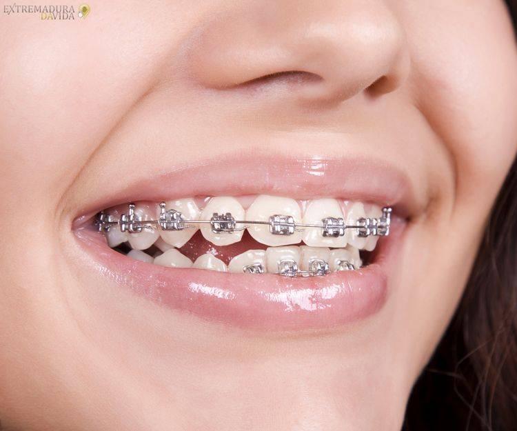 Clinica dental en Cáceres Dentalife