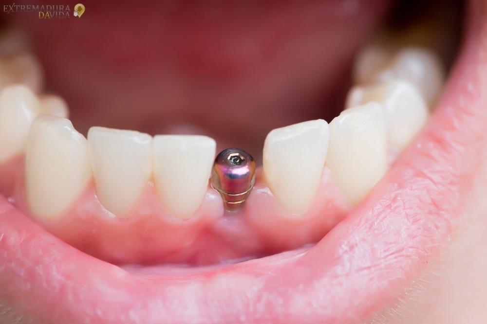 Clinica dental en Navalmoral de la Mata Dr Jesús Genovés
